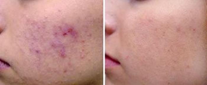 laserowe leczenie blizn trądzik