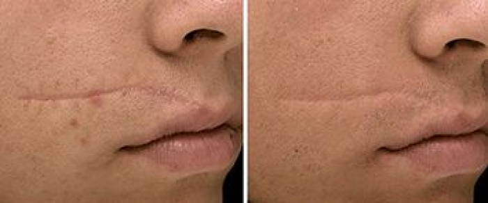 laserowe leczenie blizn