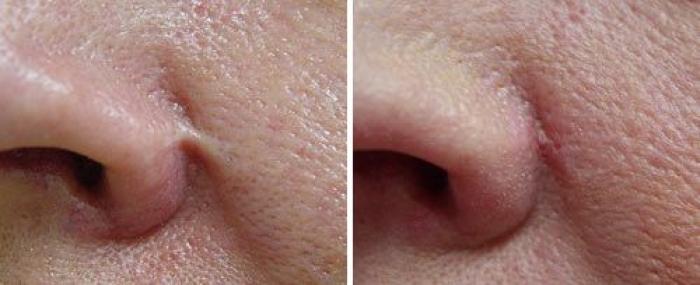 leczenie usuwanie blizn